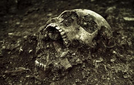 Skeletal Series Part 3: The Human Skull (1/6)