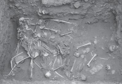 Skeletal Series Part 5: The Human Rib Cage (6/6)