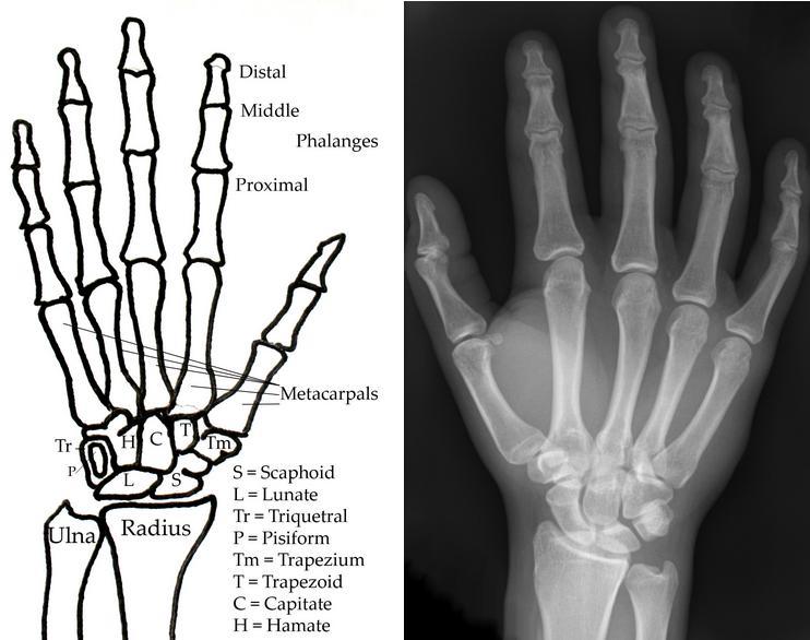 Skeletal Series Part 8: The Human Hand (3/6)