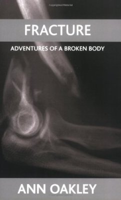 fracturefracture