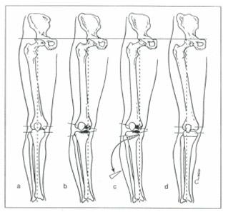 knee-osteo